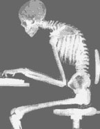 X-ray image of person stooped at a computer